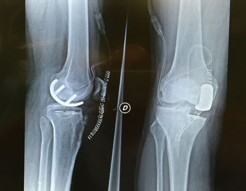 Patologie del ginocchio